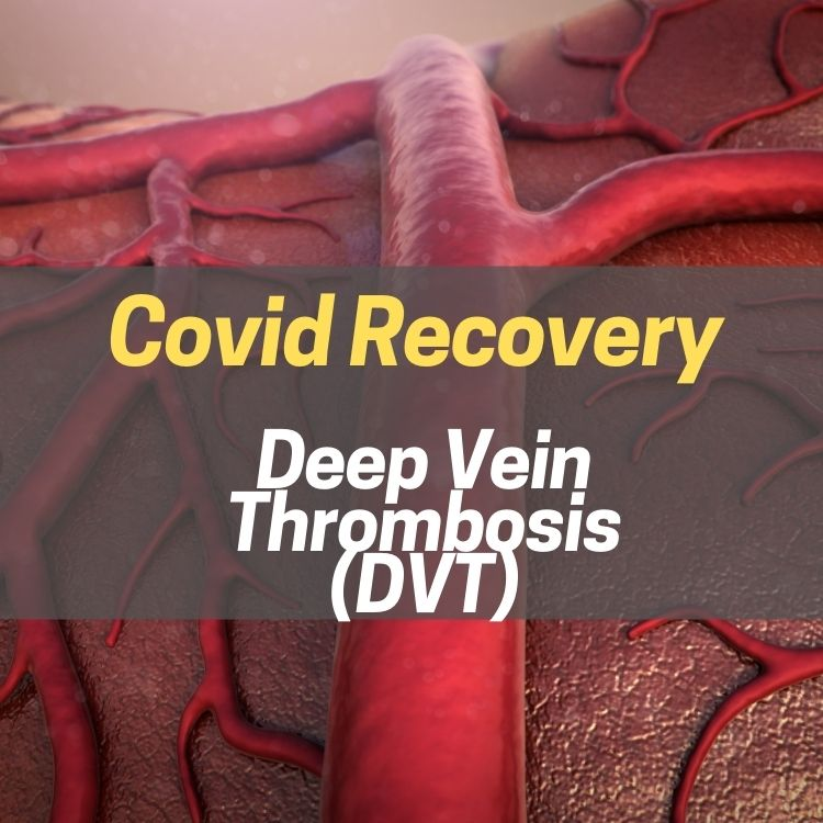 Deep Vein Thrombosis - DVT & Covid Recovery