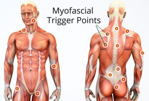 Trigger Points - Myofascial Relases