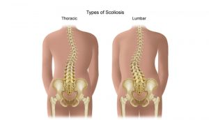 Scoliosis - Types